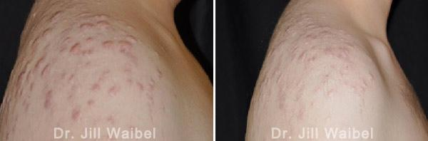 ACNE SCARS - Before and After Treatment Photos - Raised Acne Scar -body (right side view)
