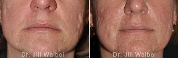 ACNE SCARS - Before and After Treatment Photos - face (frontal view)
