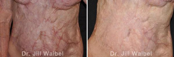 BURN SCARS - Before and After Treatment Photos: female (body, frontal view)