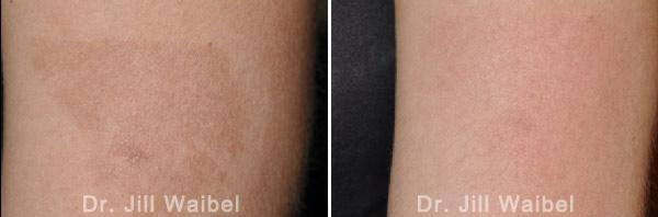 BURN SCARS: Before and After Treatment Photos - leg