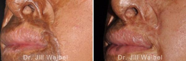 BURN SCARS: Before and After Treatment Photos - face (left side, oblique view)