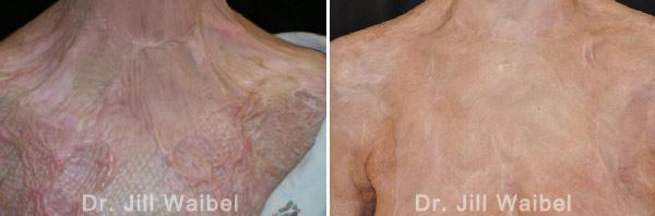 BURN SCARS: Before and After Treatment Photos - body (neck, breast)