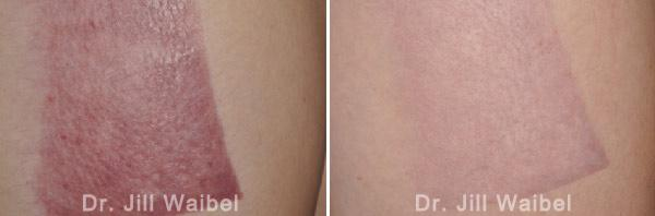 BURN SCARS. Before and After Treatment Photos