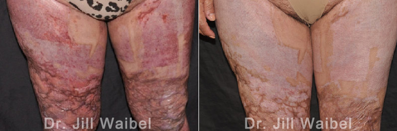 Burn Scar Treatment Before And After Pictures In Miami Fl