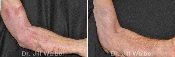 BURN SCARS - Before and After Treatment Photos: male (hand, side view)