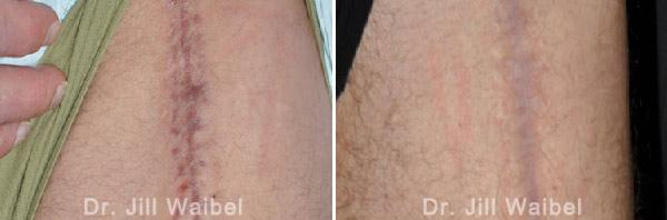 BURN SCARS - Before and After Treatment Photos: body