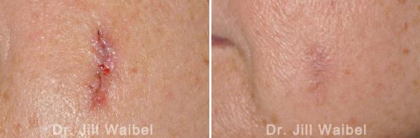 SURGICAL AND COSMETIC SCARS. Before and After Treatments Photos: female (face)