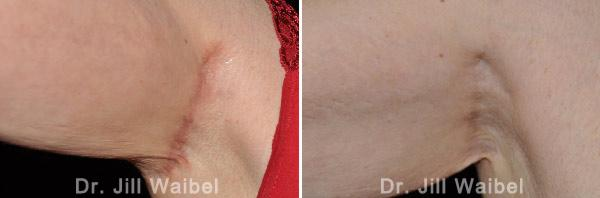SURGICAL AND COSMETIC SCARS - Before and After Treatments Photos - armpit