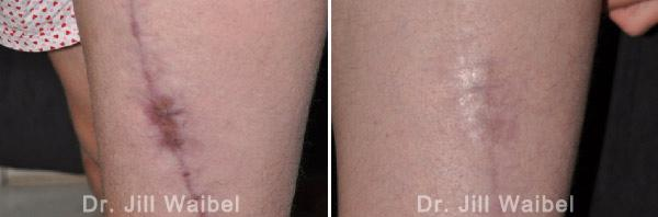 SURGICAL AND COSMETIC SCARS - Before and After Treatments Photos - leg (left side view)