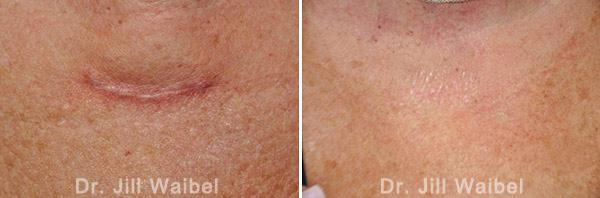 SURGICAL AND COSMETIC SCARS. Before and After Treatments Photos: neck