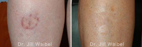 SURGICAL AND COSMETIC SCARS. Before and After Treatments Photos: leg