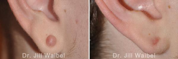 KELOIDS - Before and After Photos: woman (ear, side view)