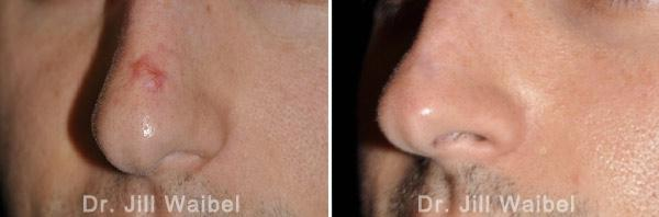 TRAUMATIC SCARS. Before and After Treatments Photos - nose