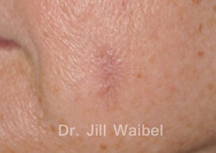 SURGICAL  AND COSMETIC SCARS. After Treatment Photo: female (left side view)