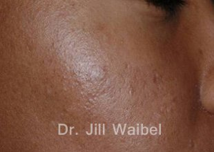 ACNE SCARS: After Treatment Photo - face (oblique view)