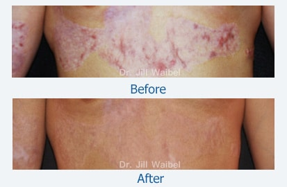 BURN SCARS. Before and After Treatment Photo: body (frontal view)