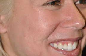 Depressed Acne Scars. After Treatment Photo - face (female, oblique view)