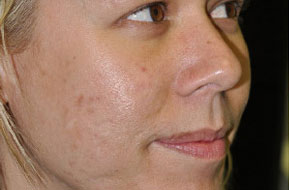 Depressed Acne Scars. Before Treatment Photo - face (female, oblique view)