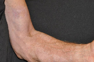 Burn Scar - After Treatment Photo: hand