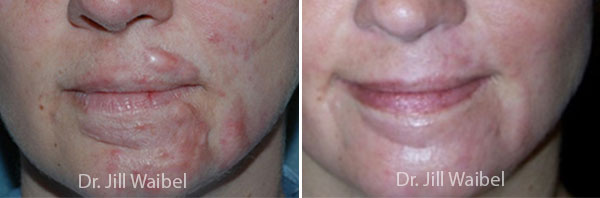Hypertrophic Scar Treatment. Before and After Treatments Photos: female (face)